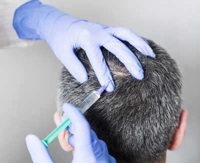 PRP Treatments for hair loss
