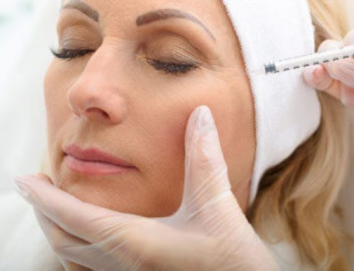Common Myths about Botox
