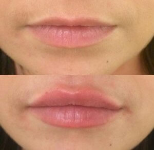 Lip Augmentation – before and after