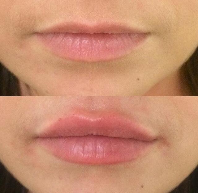 Lip Augmentation - Lip injections