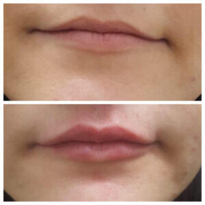 Lip filler - Lip injections