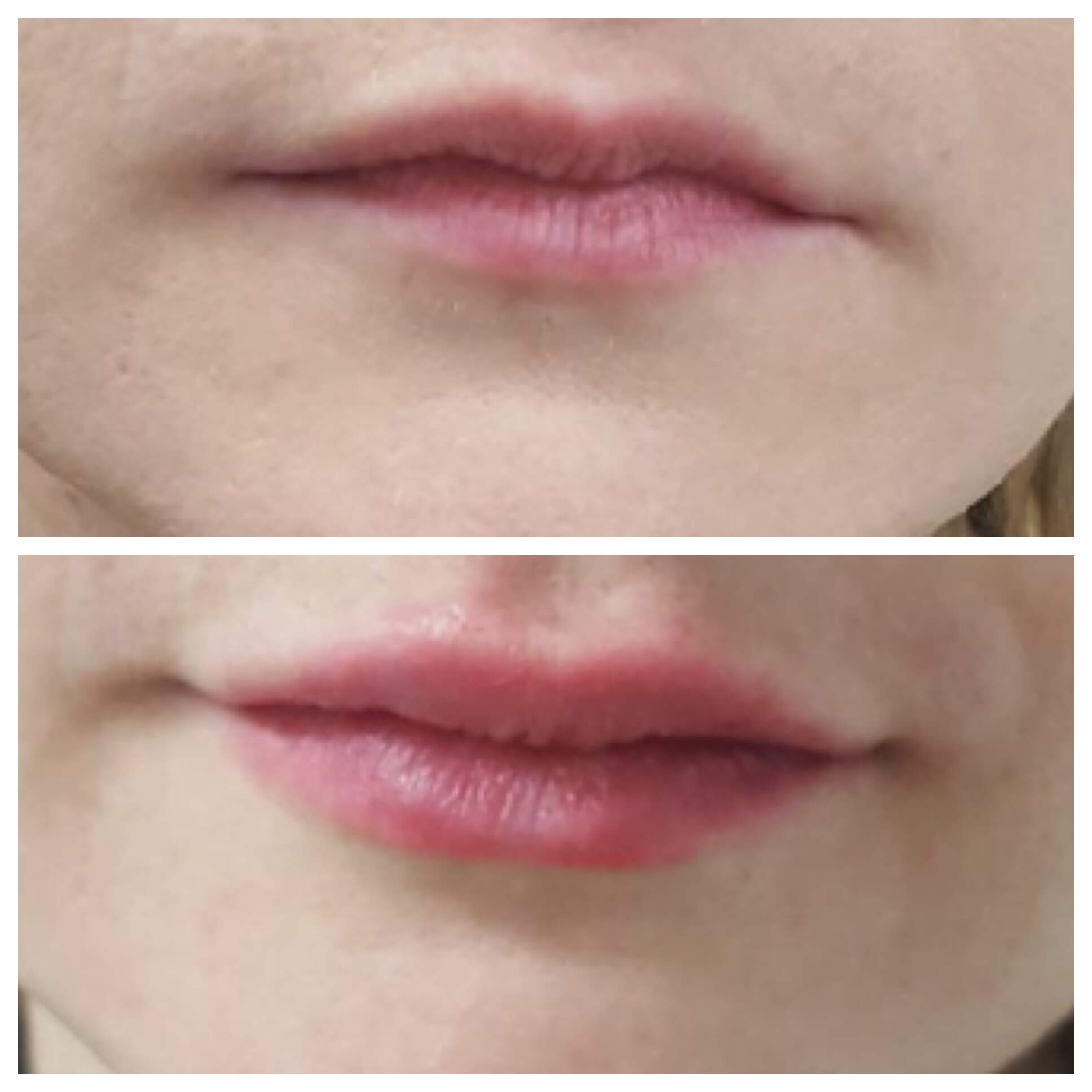 Lip filler - Lip injections