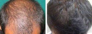 MDA hair booster