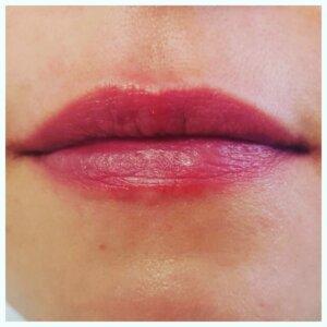 Lip Plumper Photo
