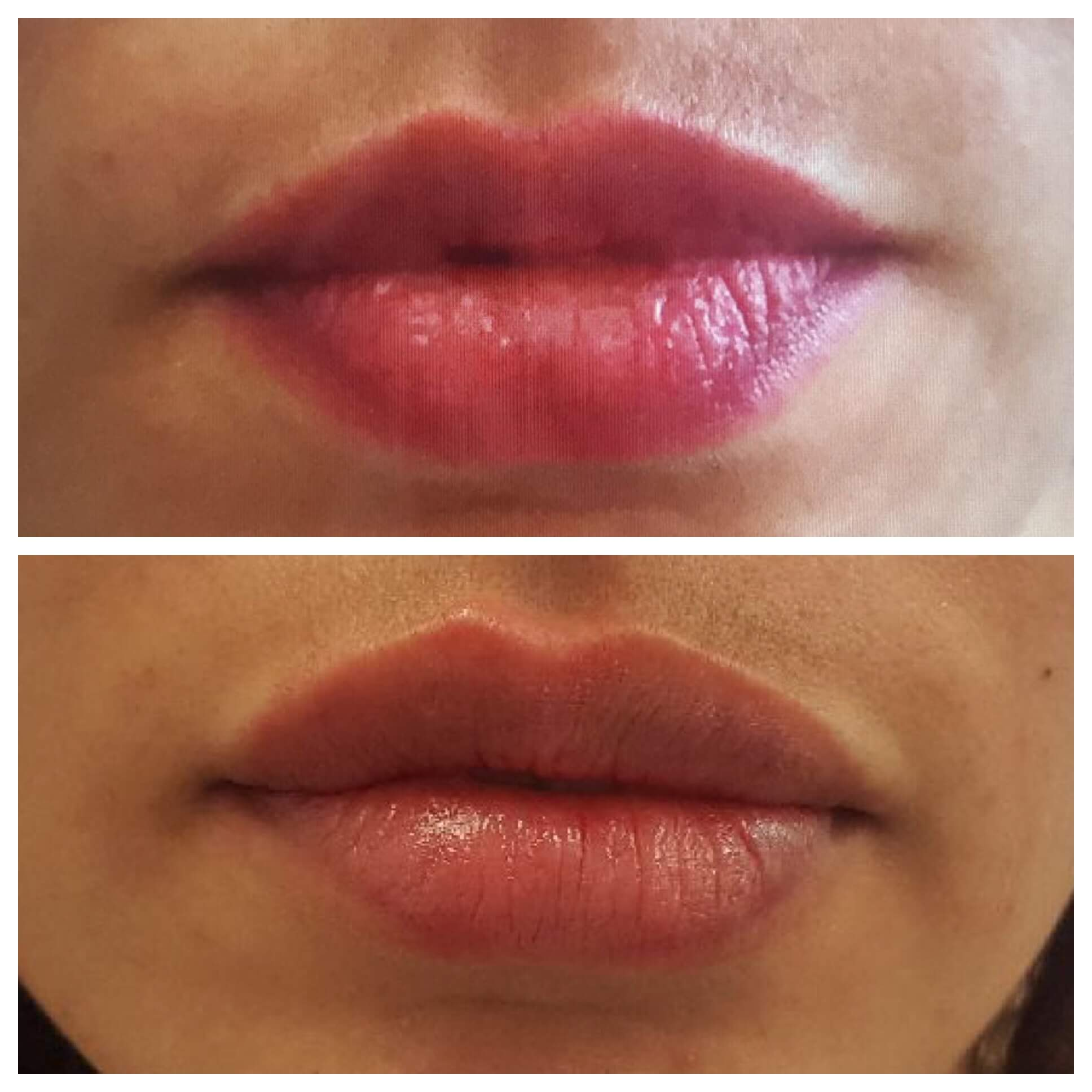 Before and after - lips