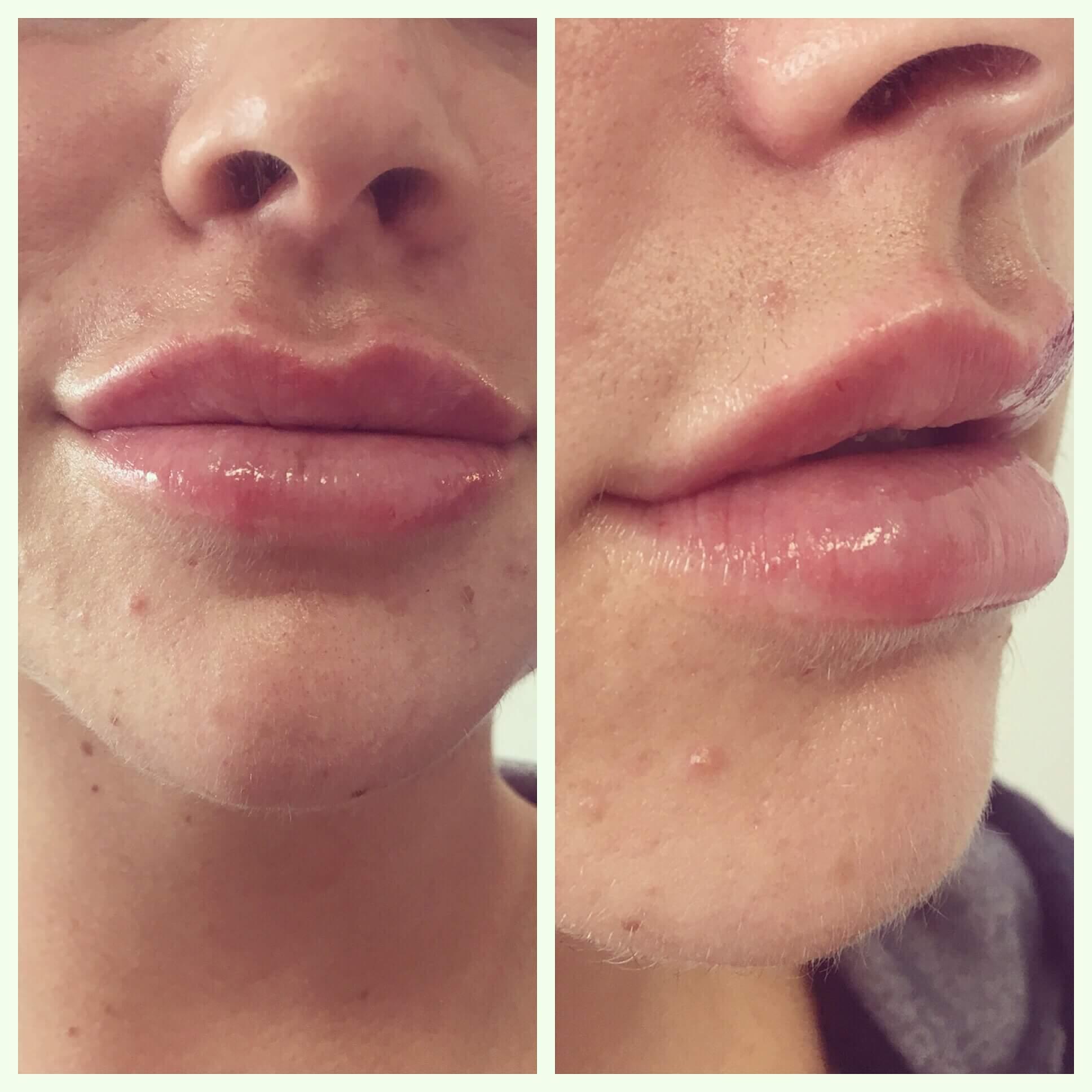 fuller lips 2020